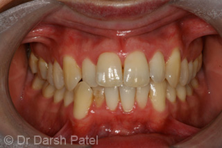 darsh patel case 1 before