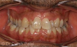 darsh patel case 13 before