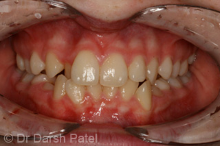darsh patel case 14 before