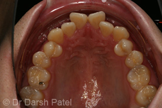 darsh patel case 16 before