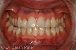 darsh patel case 5 before